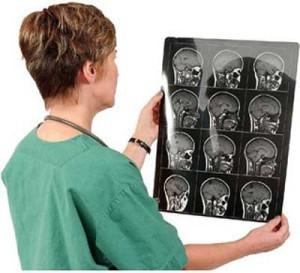 МРТ головного мозга, Ставрополь.